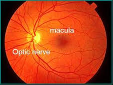 images (28)-macular degenerated eye